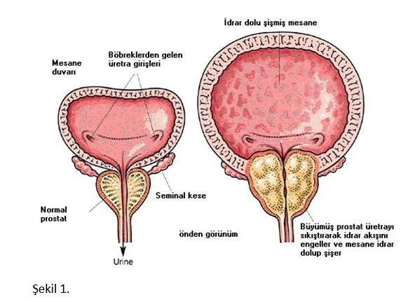 Prostat büyümesi